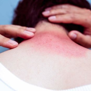 The Reader's Digest Guide to Getting Rid of Sunburns