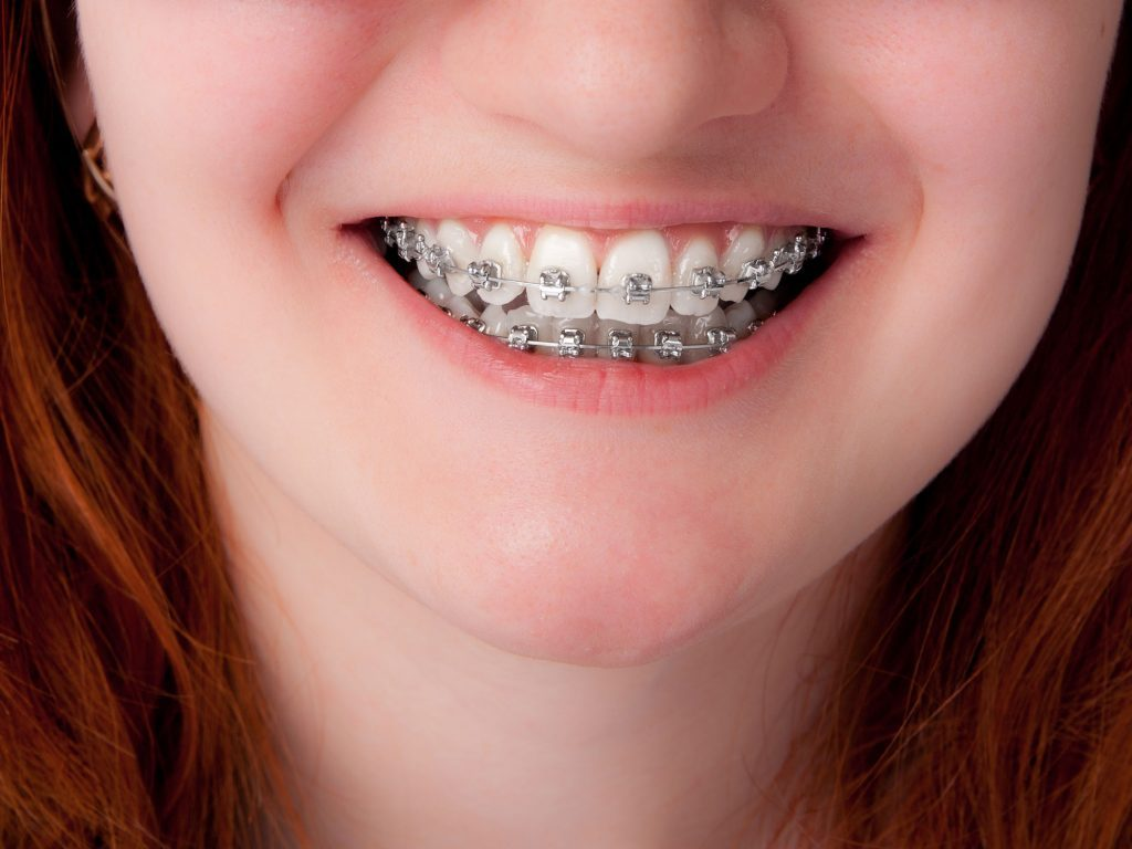 Does your child really need braces weighing the options child with braces solutioingenieria Choice Image