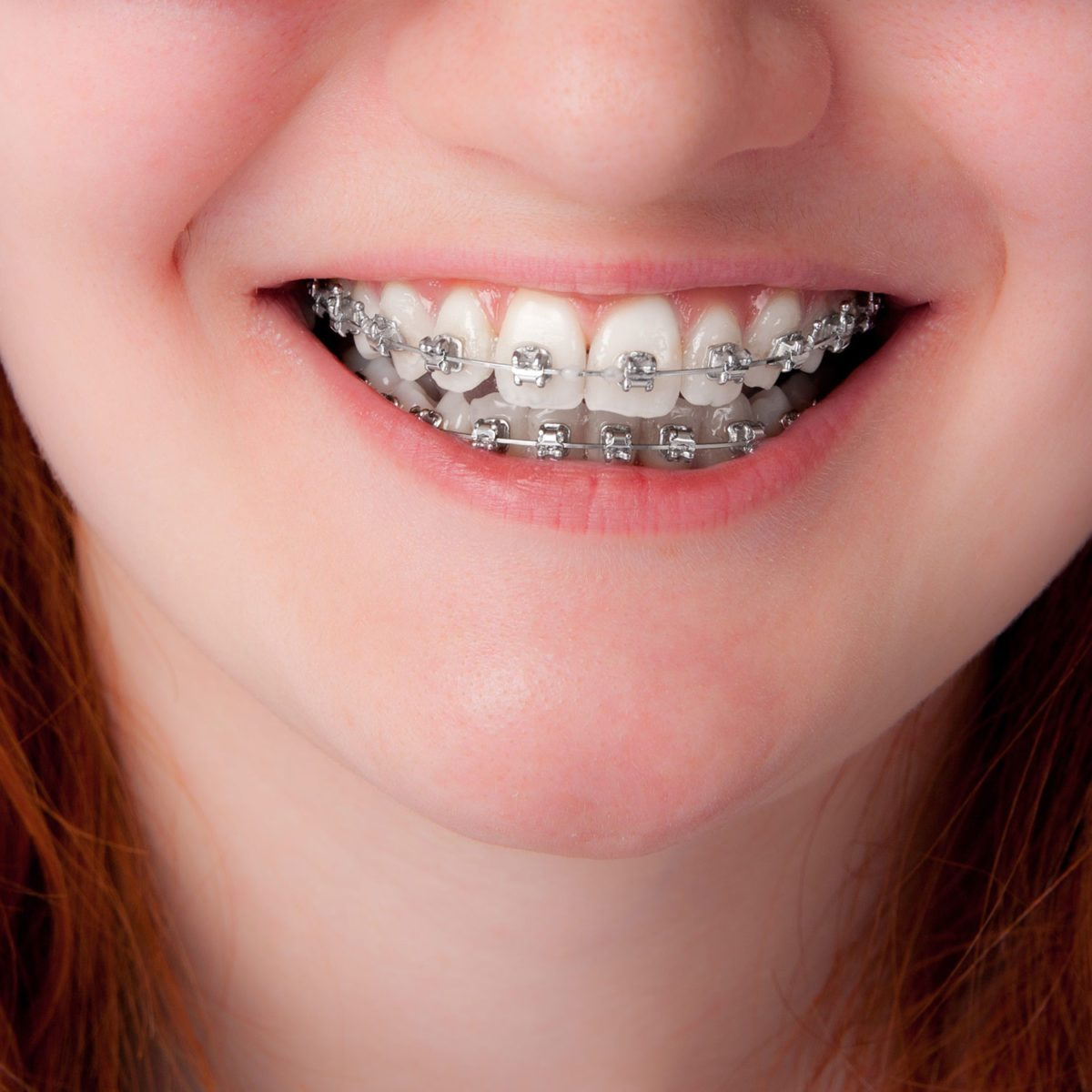 does your child really need braces weighing the optionsBraces #16