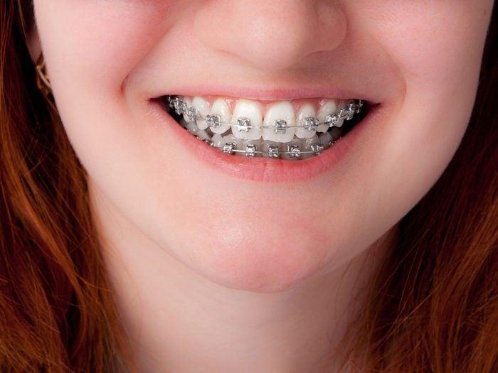 Child with braces