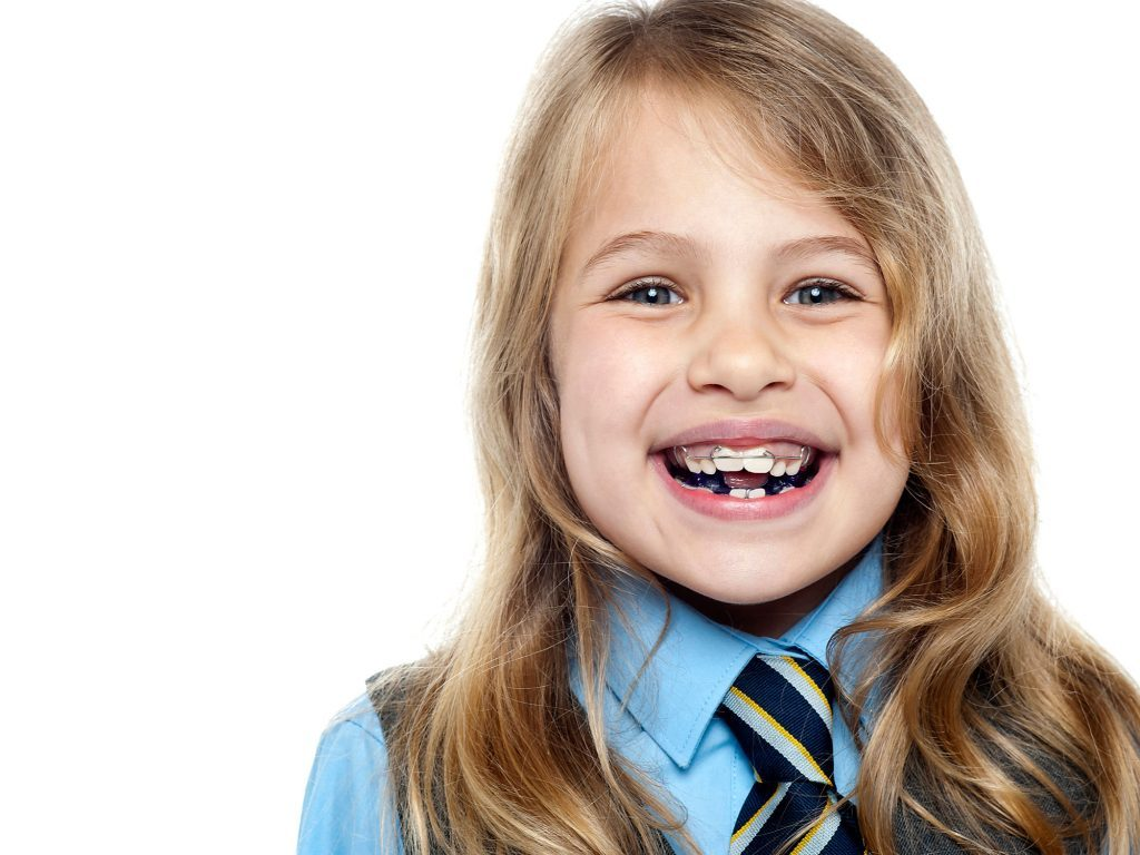 Does your child really need braces weighing the options does your child need braces or not solutioingenieria Choice Image