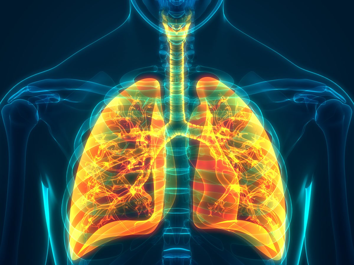COPD in Canada - lungs x-ray