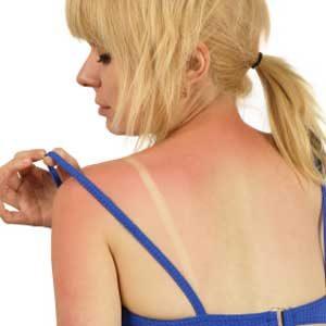 1. Cool Off Sunburn and Other Skin Irritations
