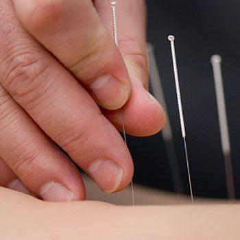 2. Get Acupuncture
