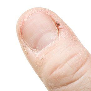 4. Treat a Hangnail