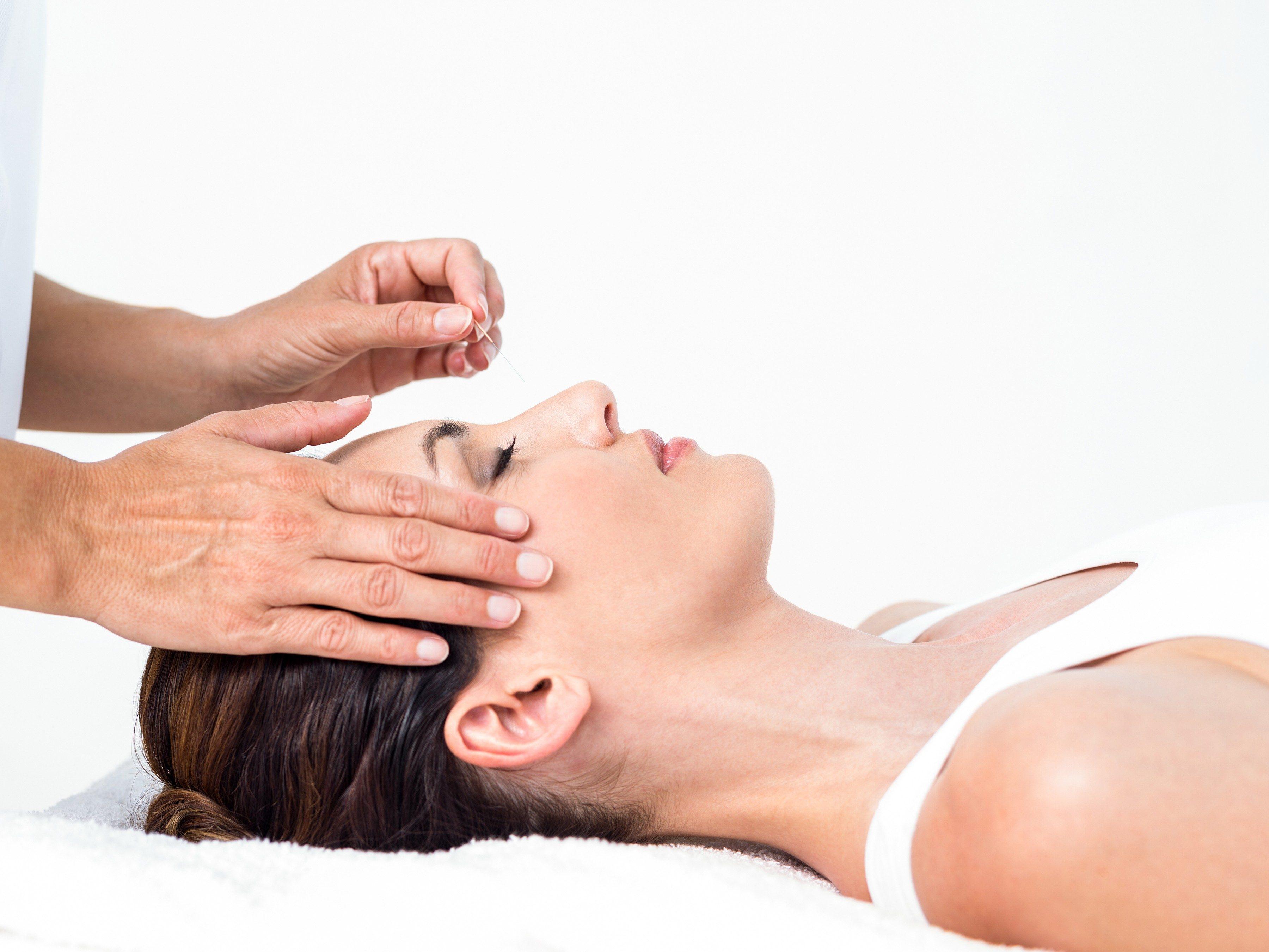 8. Acupuncture