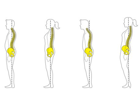 Do you know the correct way to stand?