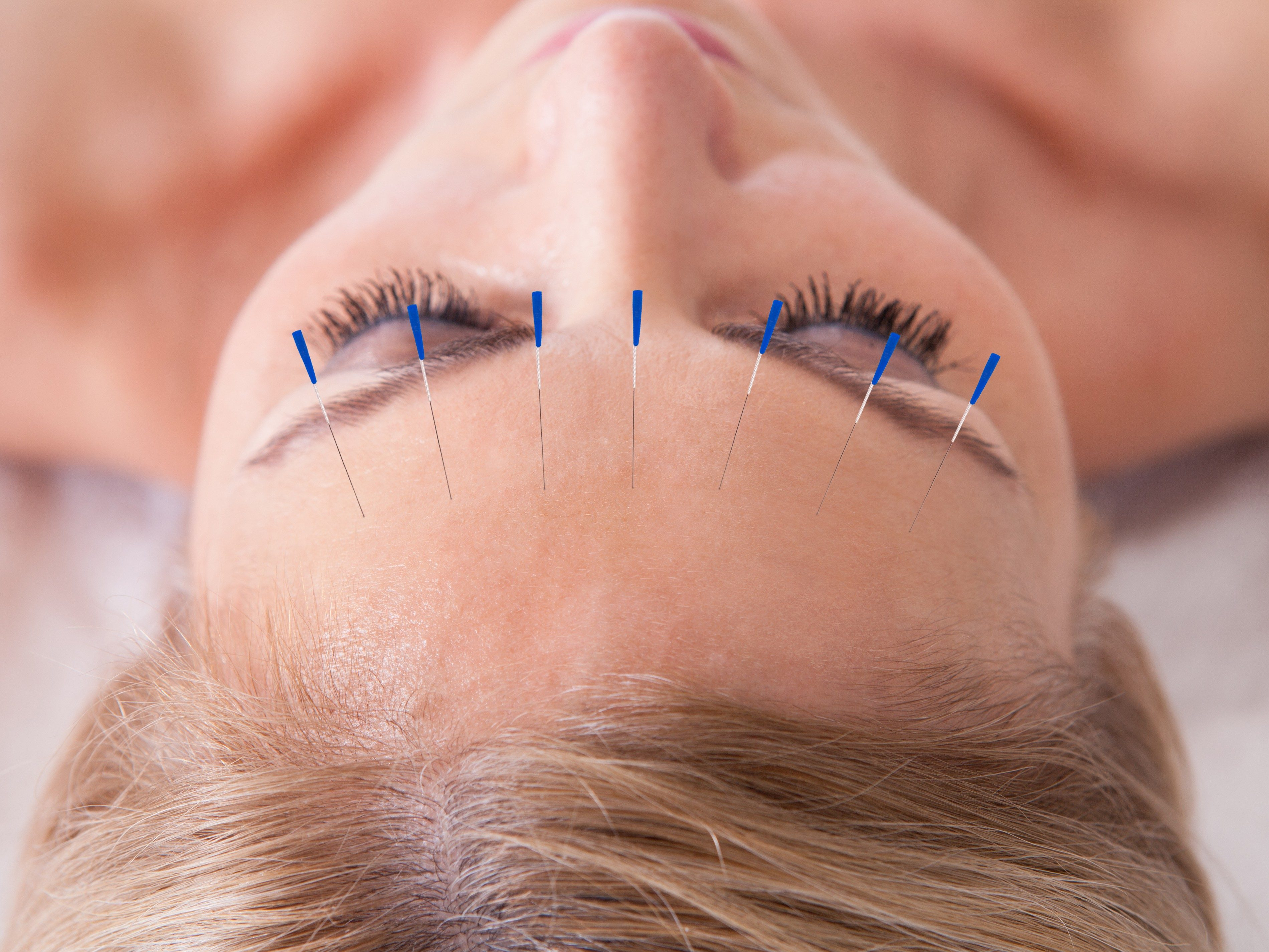 1. What You Should Know About Acupuncture