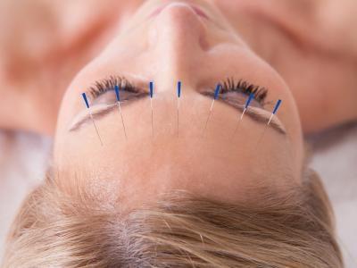 7. Acupuncture.