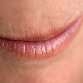 Heal Those Chapped Lips