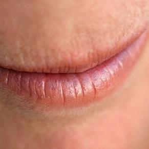 Heal Those Chapped Lips