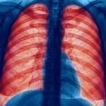 COPD in Canada: Your Questions Answered