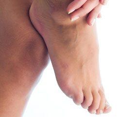 2. Deflate Swollen Feet