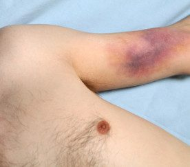 How to Get Rid of a Bruise