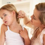 Chicken Pox: 3 Ways to Calm the Itch
