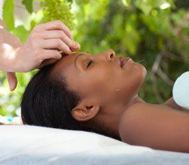 1. Acupuncture