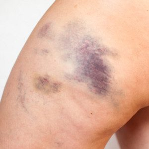 Bruise Treatment and Causes