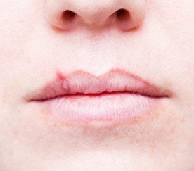 To get rid of cold sores how to get rid of cold sores ccuart Images