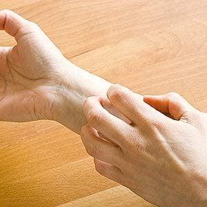 3. Calm Psoriasis