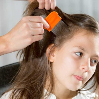 8 Ways to Treat Head Lice