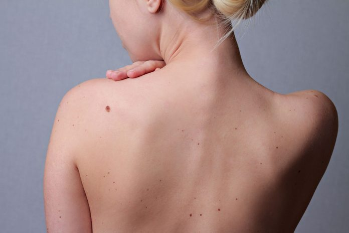 Woman with moles
