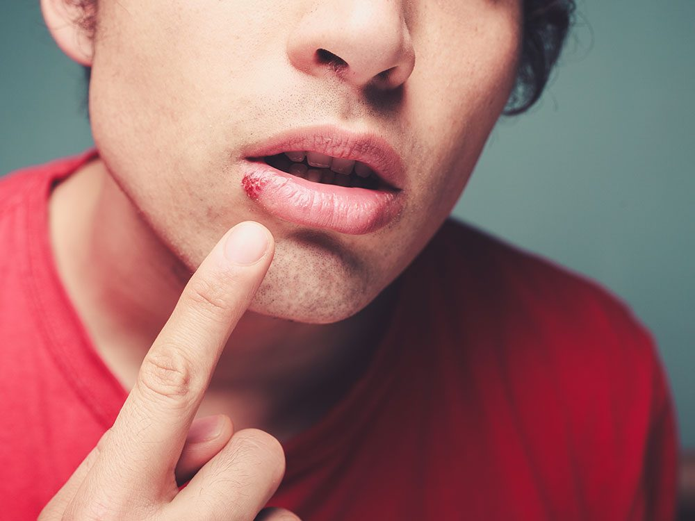 Man with cold sore