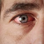 Tired, Irritated Eyes: Two Experts Give Their Best Tips