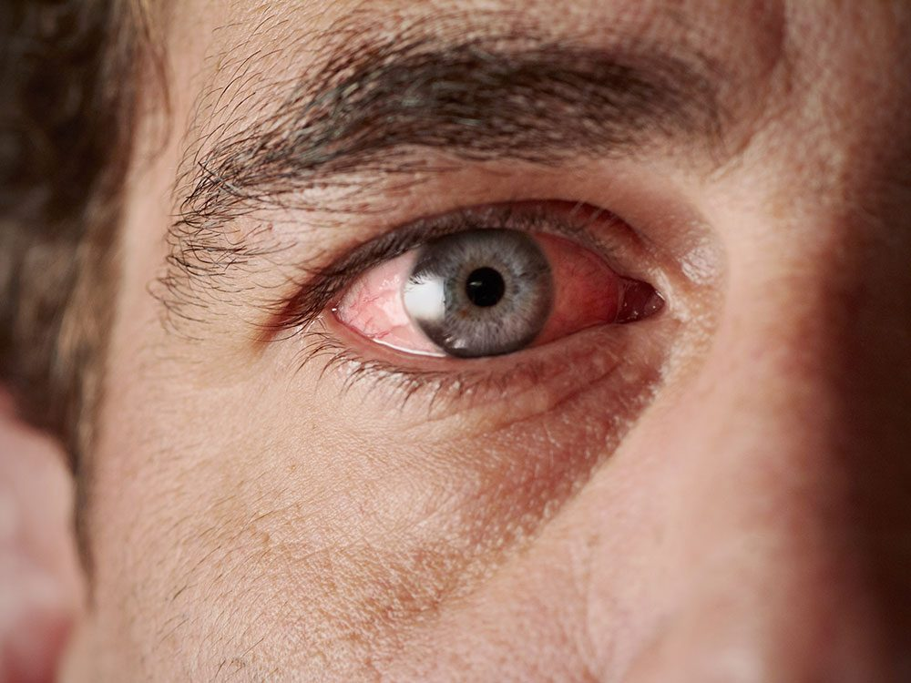 Man with irritated eyes