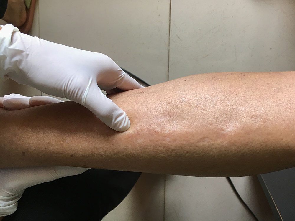 Patient with edema