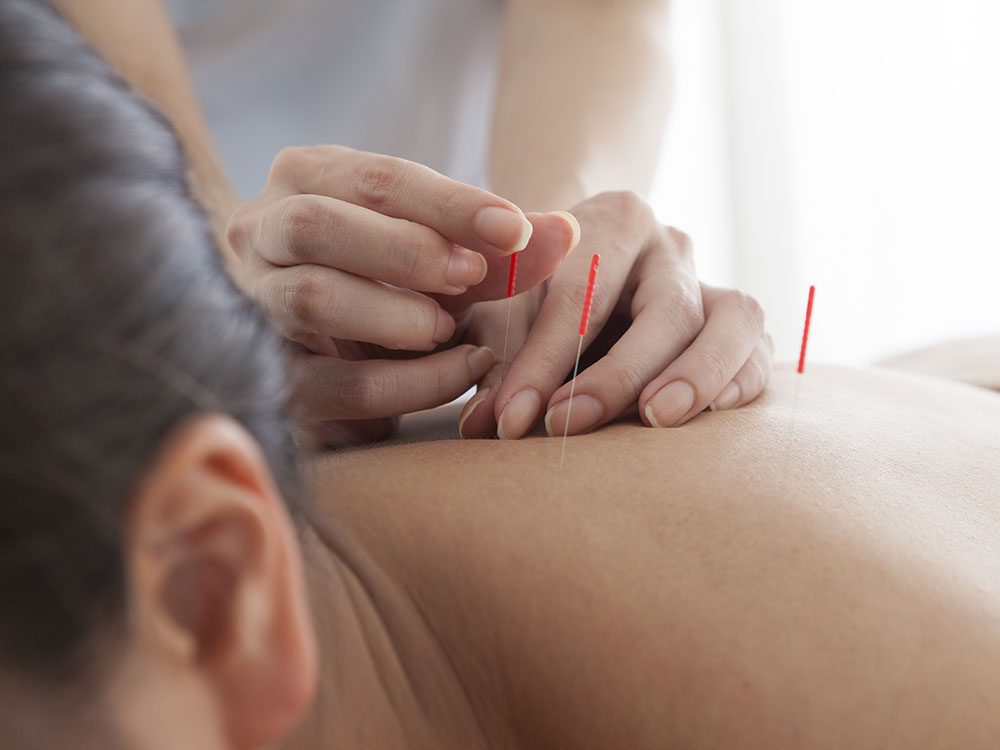 Trigger point acupuncture