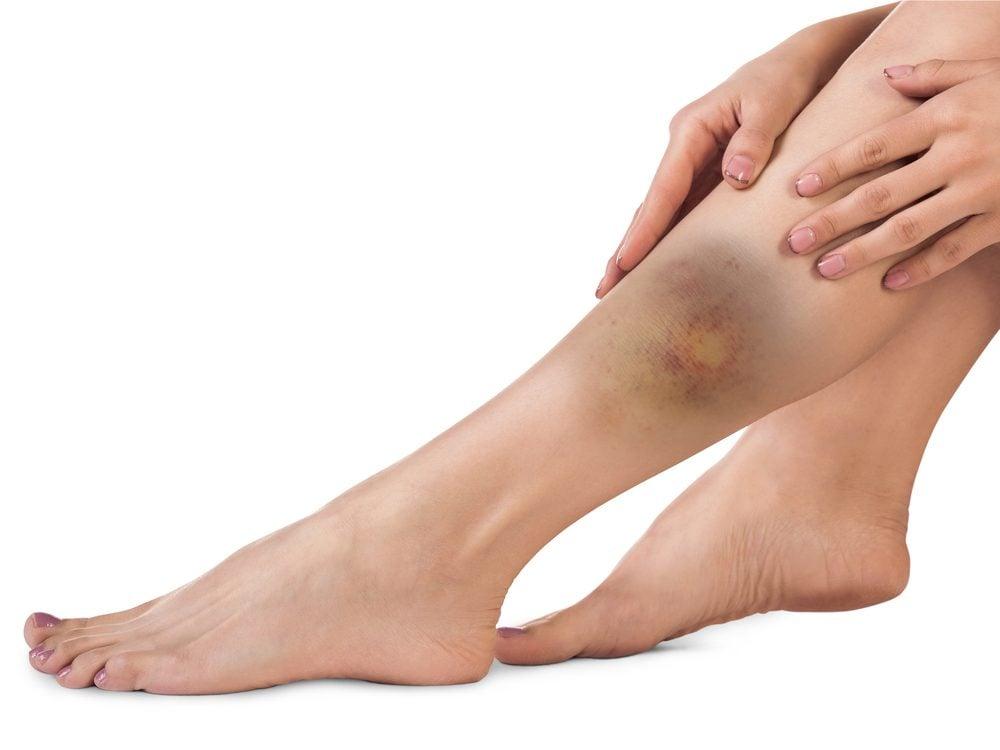 excessive-bruising