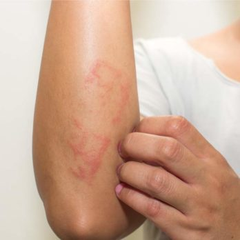 The Truth About Psoriatic Arthritis