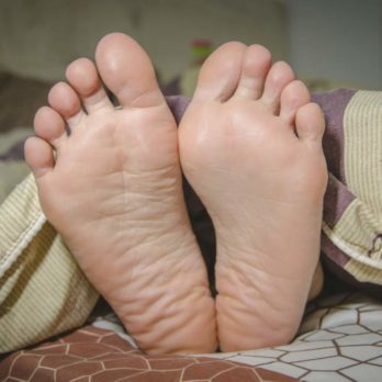 5 Things to Know About Toenail Fungus