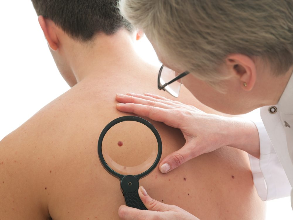 Skin changes are a sign of cancer that many men ignore