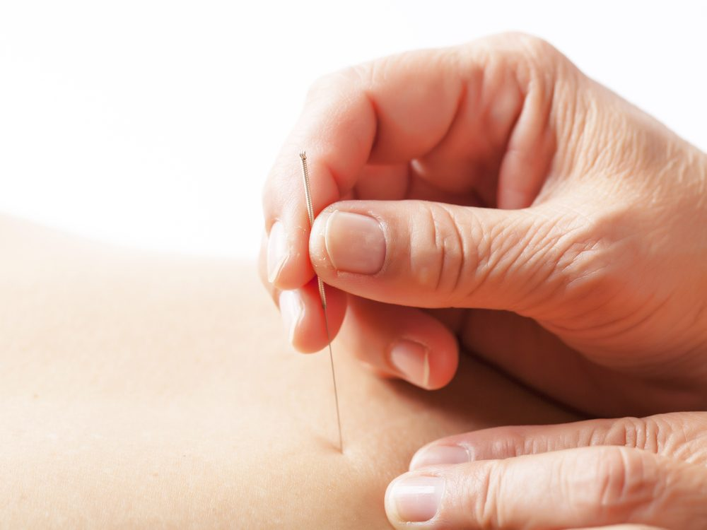 Acupuncture is a natural allergy remedy that can provide relief