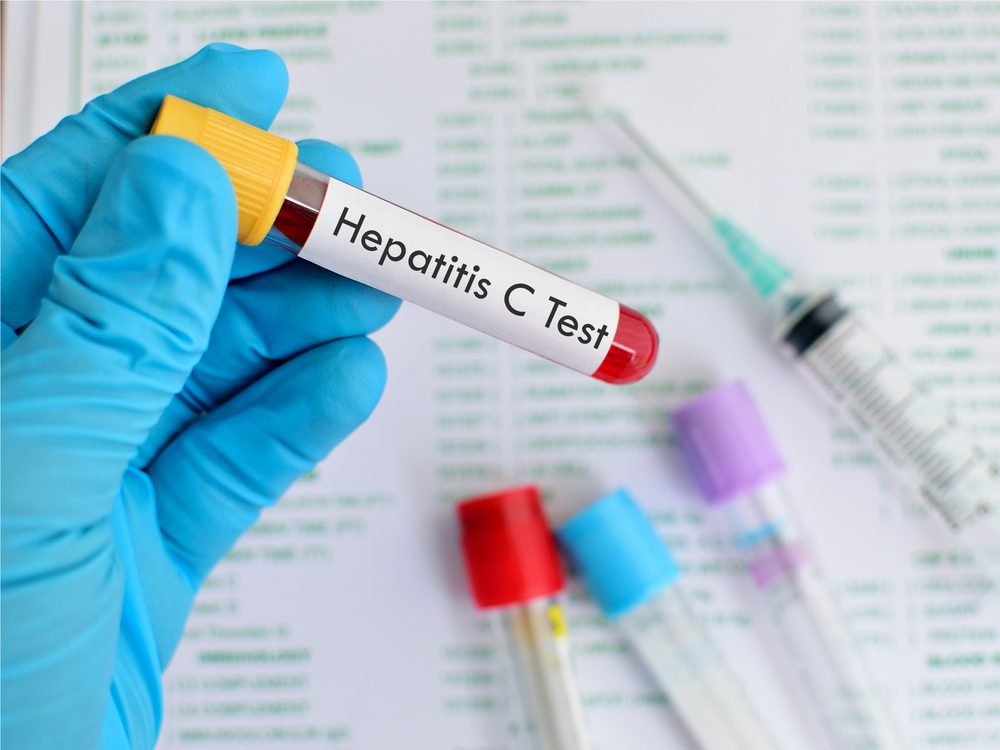 A history of hepatitis C puts you at risk for liver cancer