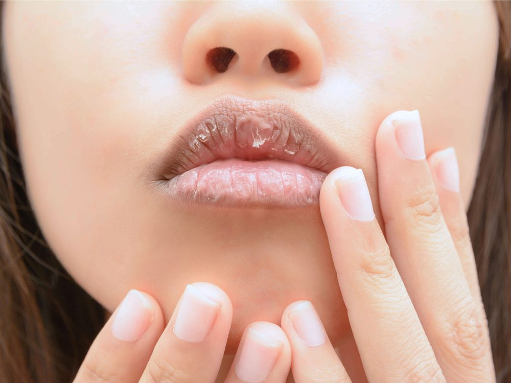 Dry lips could be a sign of disease