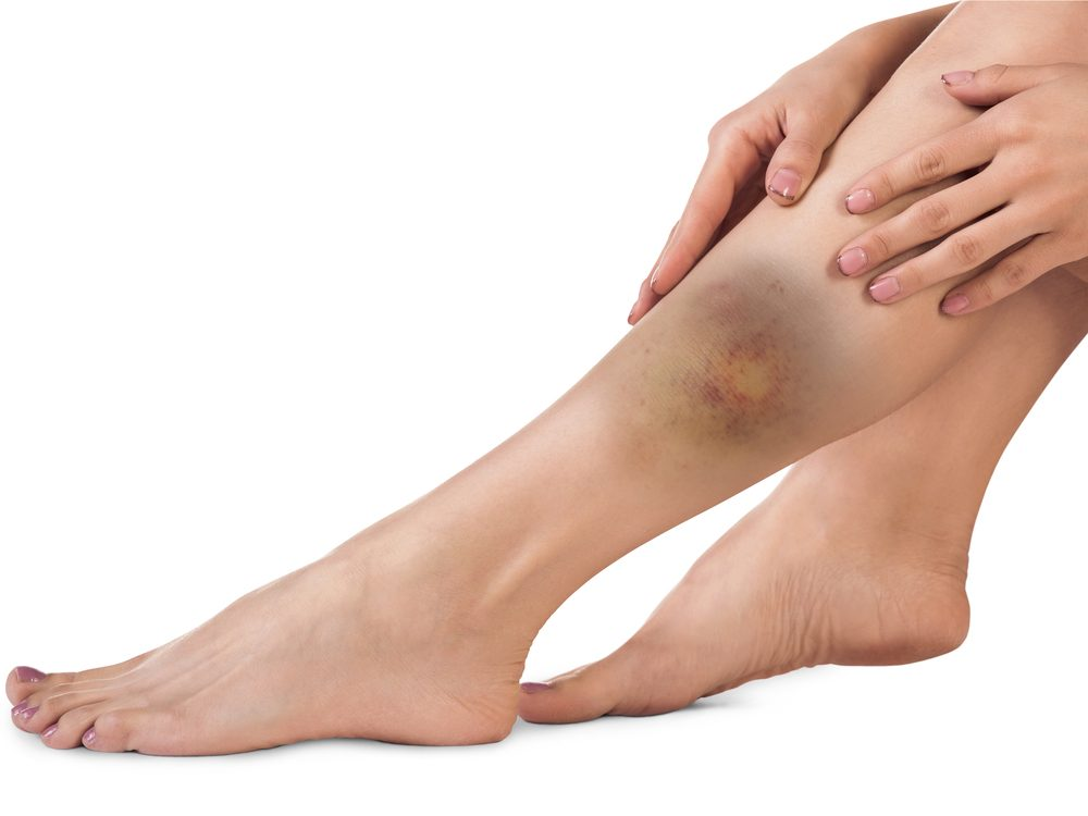 unexpected-bruises