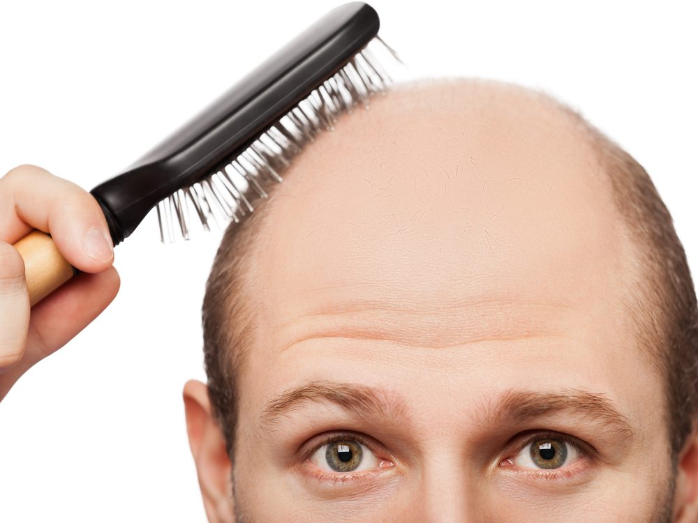 Baldness could indicate clogged arteries