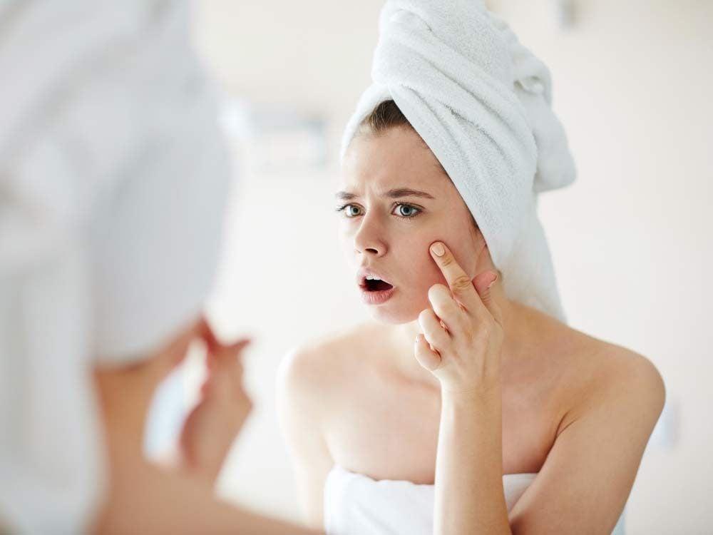 Use yogurt to fight acne