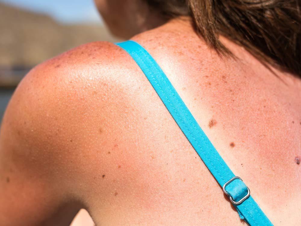 Use yogurt to get rid of sunburns