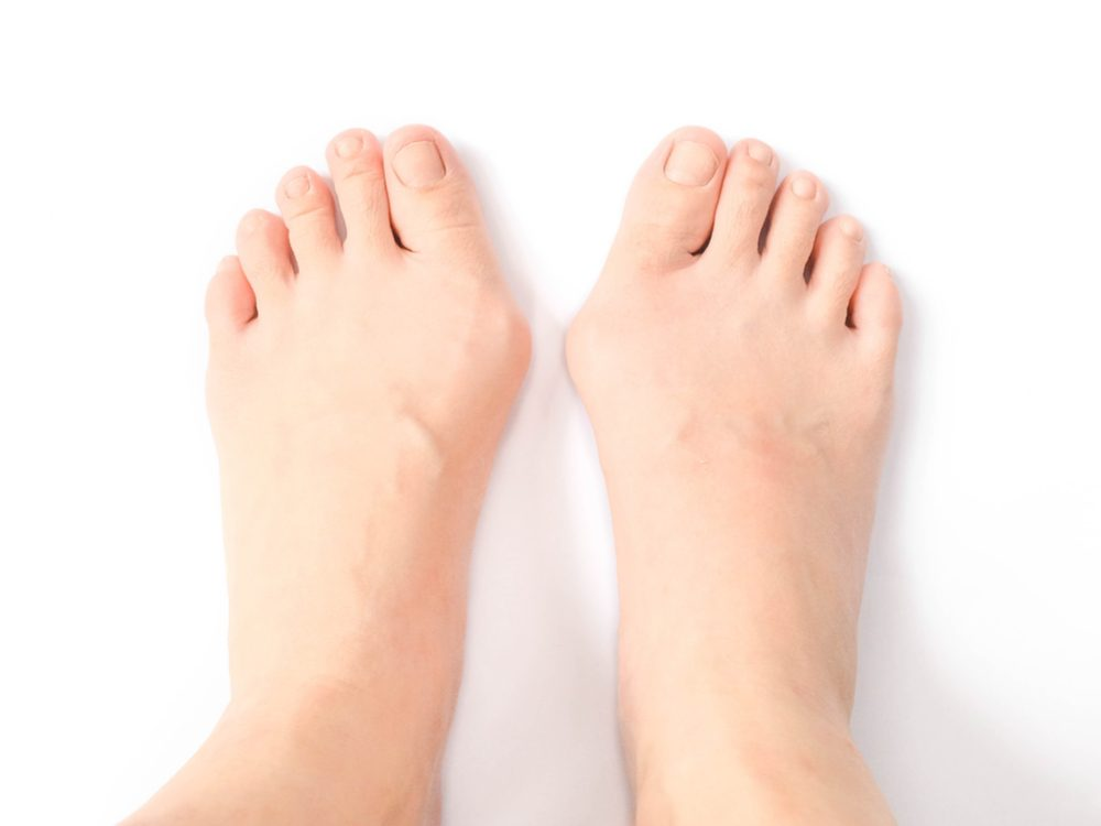 Take care of bunions while you are young