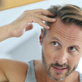 10 Ways to Stop Hair Loss in Men