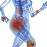 Help for Brittle Bones