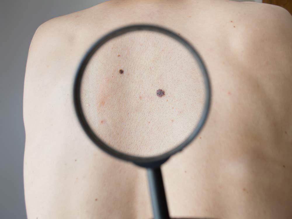 Melanoma on back