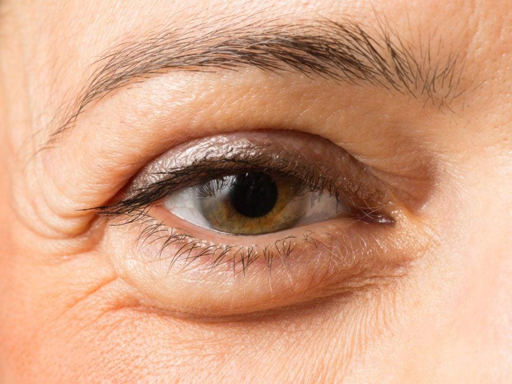 Eyelid hole