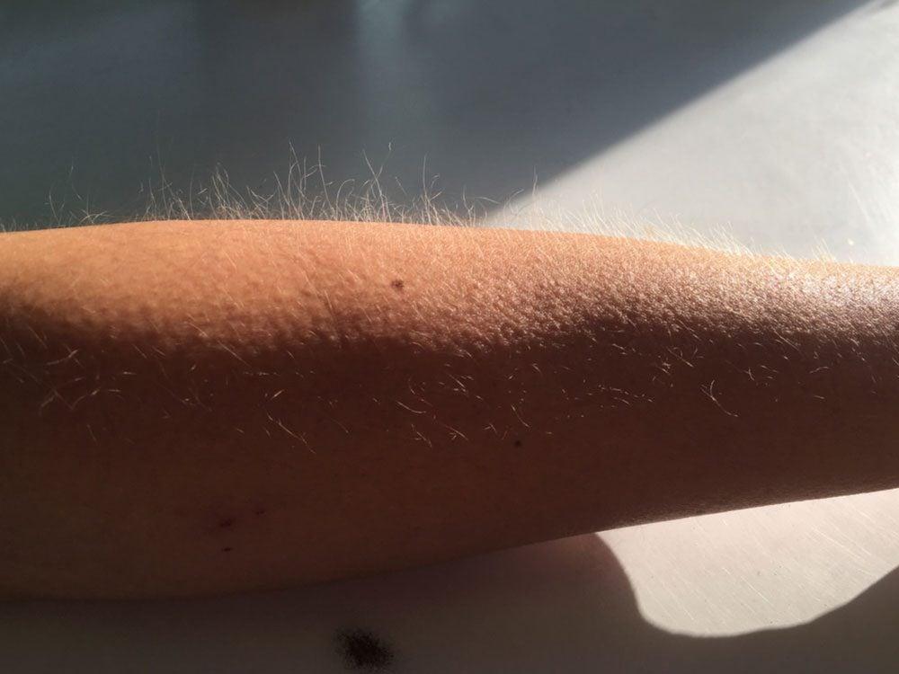 Goose pimples