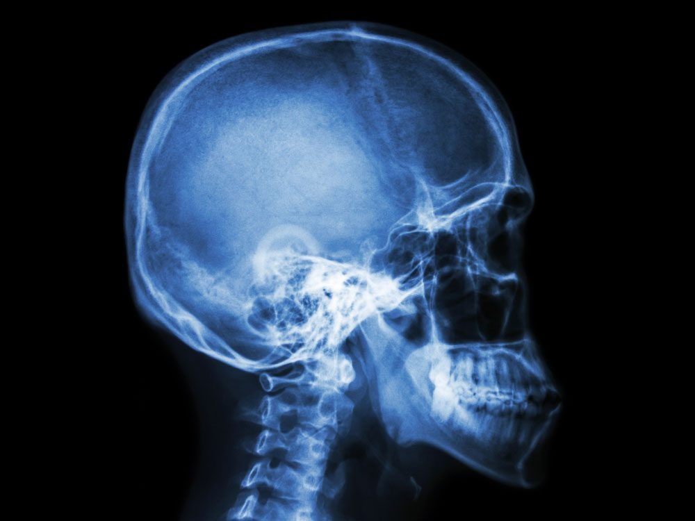 X-ray scan of human skull