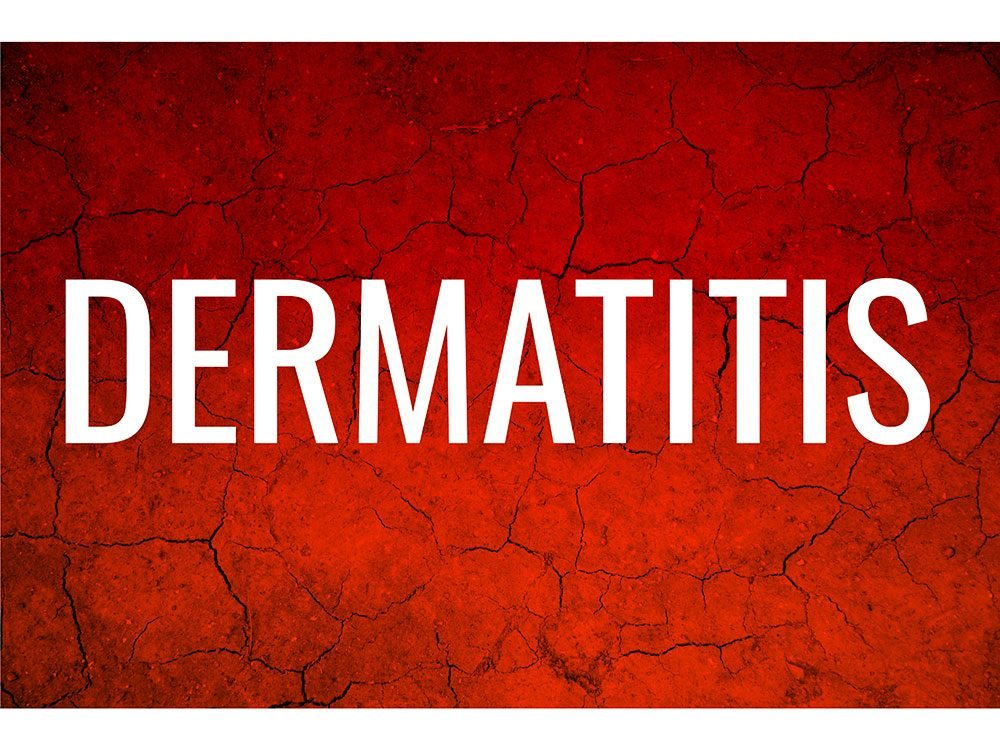 Skin condition: Dermatitis