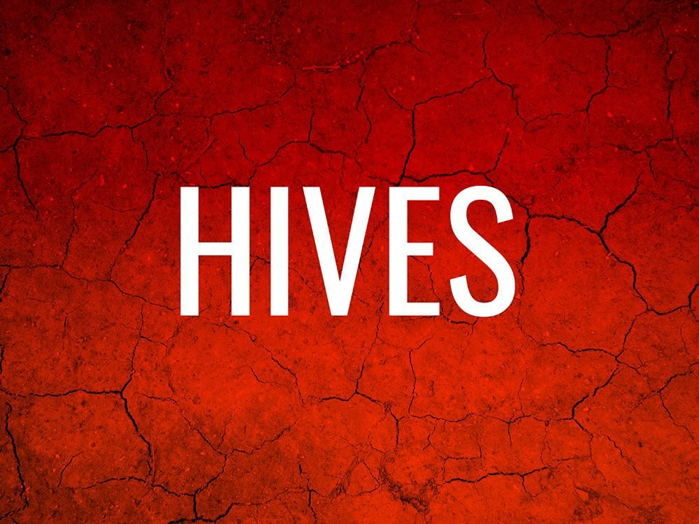 Skin condition: hives